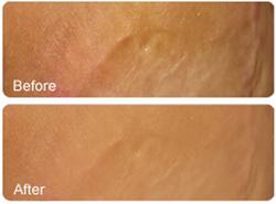 رفع سوختگی ,دستگاه میکرونیدلینگ,ترمیم پوست