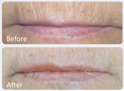دستگاه جوانسازی پوست,میکرونیدلینگ,ترمیم پوست