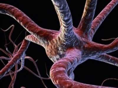 بیماری های نادر دنیا,آشنایی با بیماری ها