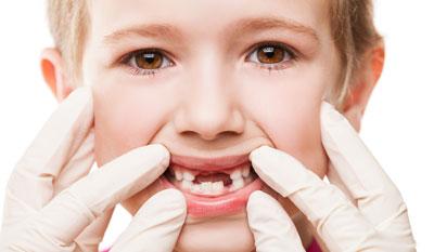 دندان های دائمی,دندان شیری كودكان