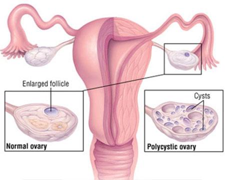 کیست های تخمدانی,درمان توده های تخمدانی در زنان,توده های تخمدانی