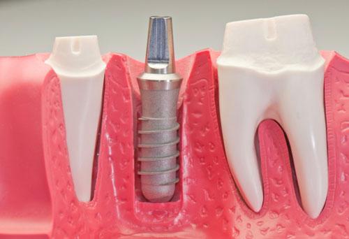 7 نکته ای که باید درباره ایمپلنت دندان بدانید