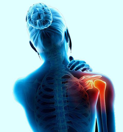 7 درمان طبیعی برای درد مفاصل