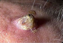 شاخک پوستی،نشانه های سرطان پوست