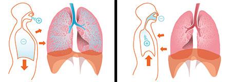 ریه,علائم عفونت ریه,عکس ریه