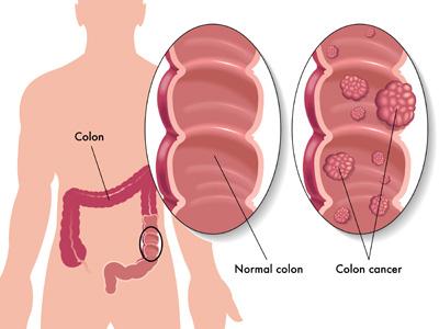 درمان سرطان روده, علائم سرطان روده