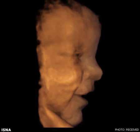 اخبار,اخبار علمی,تصاویر سه بعدی جنین