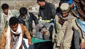 اخبار,اخبار بین الملل ,حمله عربستان به یمن