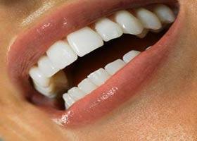 چرا دهان بعضی ها گشاد است؟
