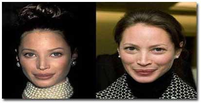چهره جوانی ستارههای معروف دنیای مد