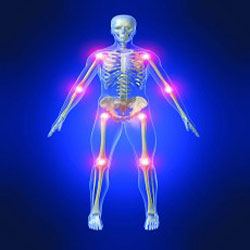رماتیسم مفاصل, علائم رماتیسم مفصلی