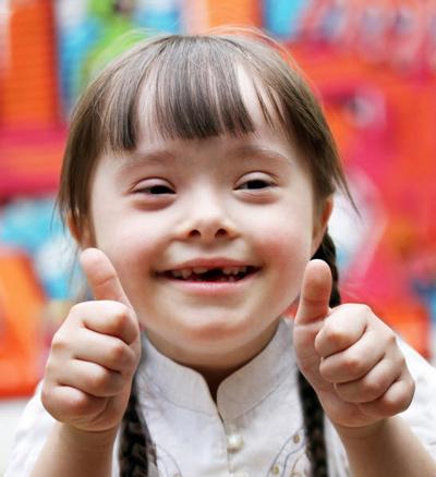اختلال ژنتیکی در کودکان