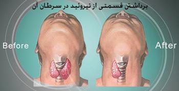 تومورهای بدخیم, سرطان تیروئید, سرطان ریه
