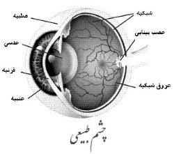 قطره های اشك مصنوعی از سوزش چشم در هوای آلوده جلوگیری می كند