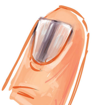 چرا ناخنهای من زیبا نیست؟