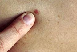خال های پوستی,جلوگیری از سرطان پوست
