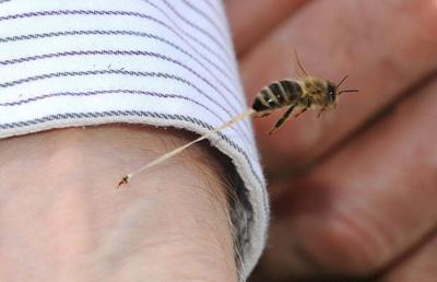 زنبور گزیدگی,درمان زنبور گزیدگی