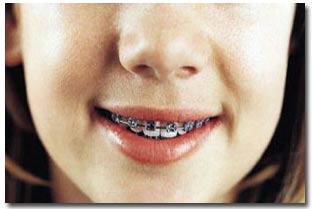 آیا دندان این بچه ارتودنسی می خواهد؟