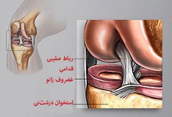 تعویض مفصل ساییده شده, آرتروز, تعویض مفصل