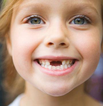 مشکلات دندان کودک,دندان های شیری کودک