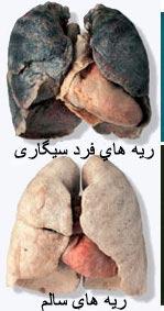 ترک سیگار,راهکارهای ترک سیگار,چگونه سیگار را ترک کنیم