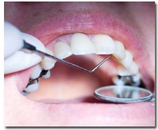 مراقبت از دندان ها در بارداري