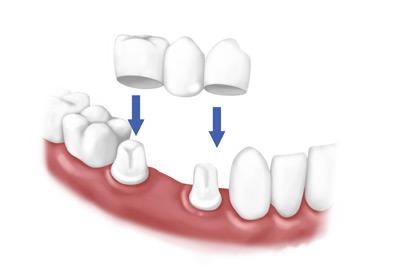 پروتز دندان ثابت,پروتز دندان,بریج دندان