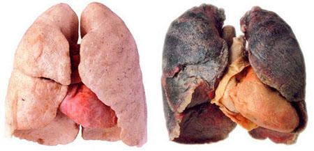 ریه,بیماری های ریوی,پاکسازی ریه