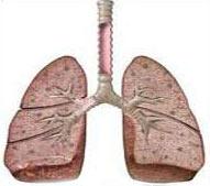 چند راهکار برای سلامت نگه داشتن ریهها