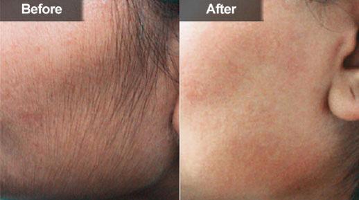 درمان پرمویی و رفع موهای زائد