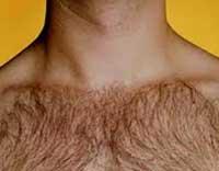 موی زائد,از بین بردن موی زائد,موی زائد در بدن آقایان