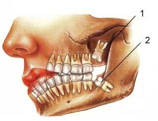 مراقب عوارض دندان عقل باشید