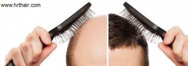 روش کاشت مو,پیوند مو,کاشت مو به روش FUT
