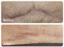 عوارض میکرونیدلینگ،جوانسازی پوست با میکرونیدلینگ,ترمیم پوست