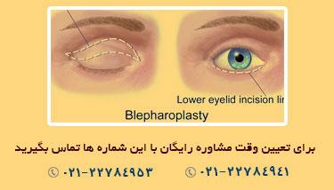 جراحی پلک,بلفاروپلاستی,پاکسازی پوست